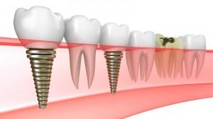 impianti dentali in Romania