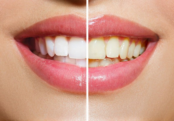 come fare lo sbiancamento dentale