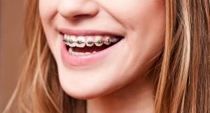 costo apparecchio denti - fissi