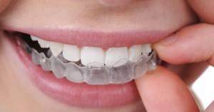 costo apparecchio denti - mobili