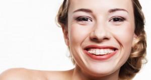 costo apparecchio denti - trasparenti