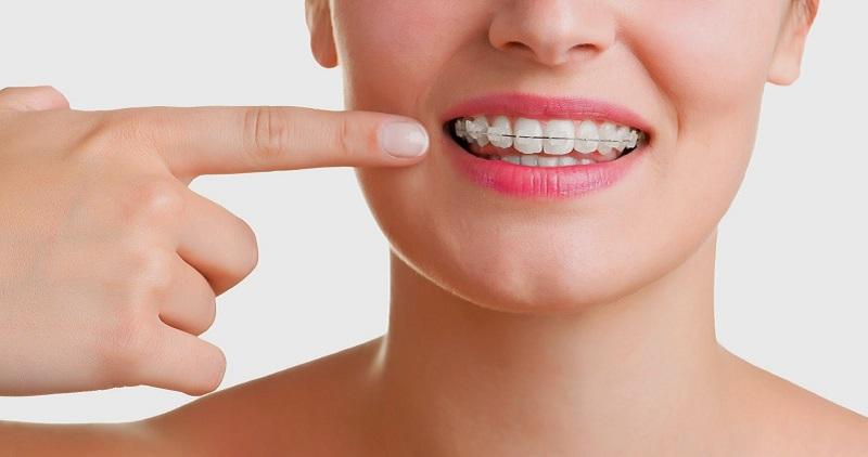 costo apparecchio denti