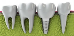 implantologia dentale roma 2